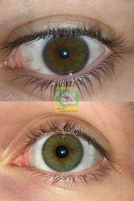 before-after-lumineyes-turkey-dr.mustafa-mete10-1