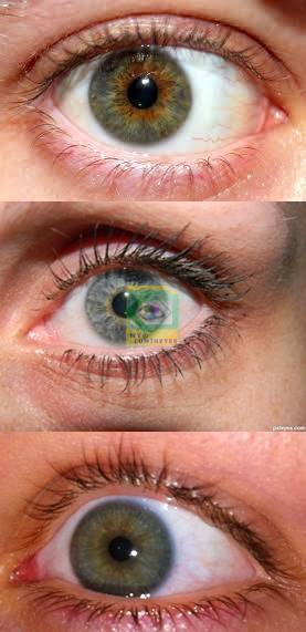 before-after-lumineyes-turkey-dr.mustafa-mete19-1