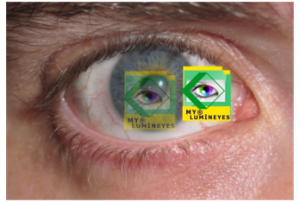eye-color-change-laser-mylumineyes4