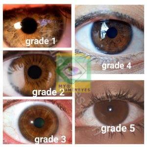 eye -color-garde-brown-laser-change