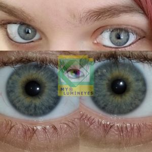 eye-color-change-laser