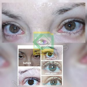 eye-color-change-laser-mylumineyes-istanbul-turkey
