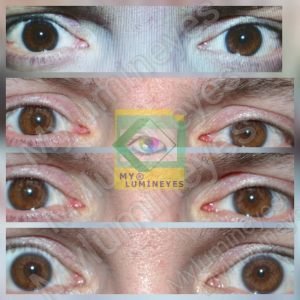laser-eye-color-change-lumineyes-new-photos