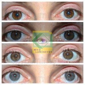 prezzi del tacchino operazione di cambio colore degli occhi laser