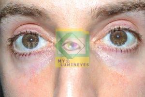 laser eye color change turkey