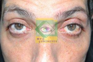 eye color change turkey