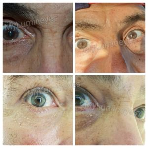 brown-to-blue-contact-lens-laser-eye-color-change-istanbul-1